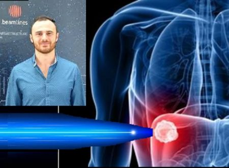 Tumori bruciati in un secondo con un laser ad elettroni. La scoperta di un fisico italiano.
